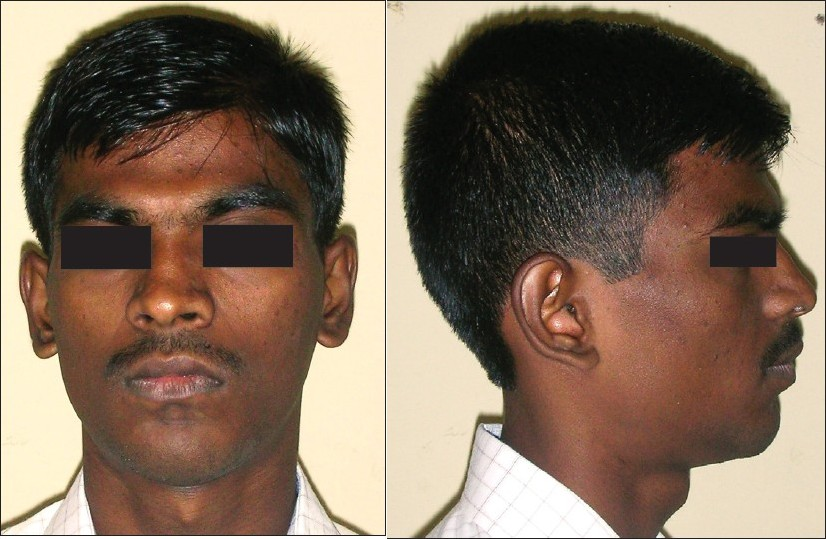 Figure 1 :(a) Pre-treatment extraoral frontal