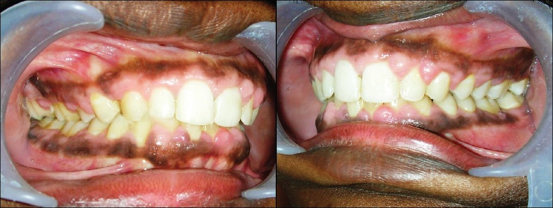 Figure 6 :(a) Post-treatment intra oral right lateral