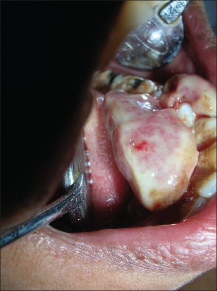 Figure 1 :A large soft tissue mass in lingual vestibule