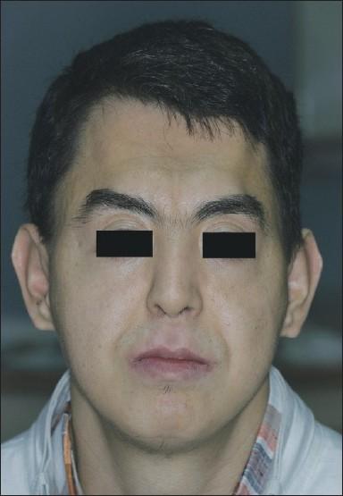 Figure 9 :Facial view after one year