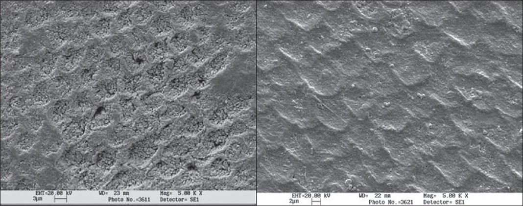 Figure 4 :(a) Case1-control group (shows the demineralised enamel surface)