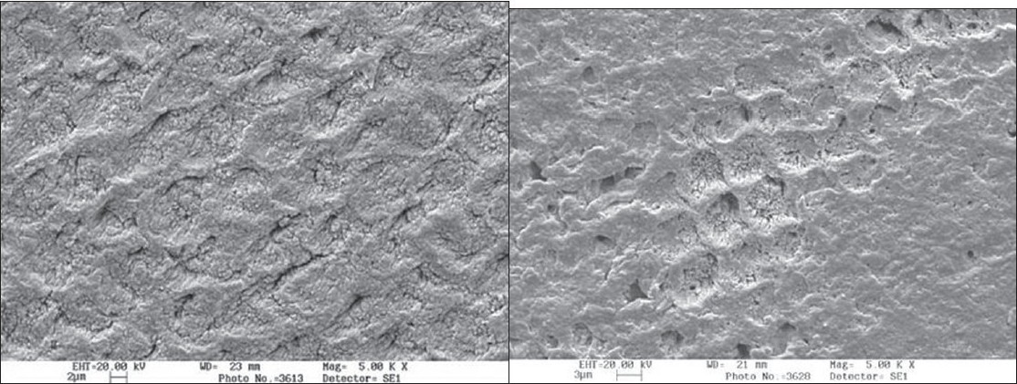 Figure 5 :(a) Case 2-control group (demineralised surface)
