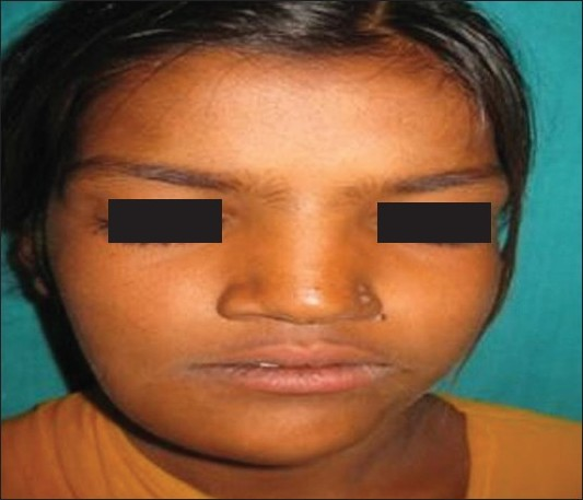 Figure 1 :Facial asymmetry on right side of face