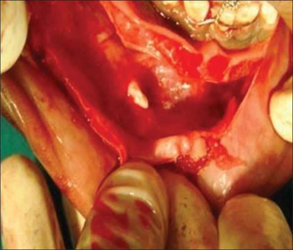 Surgical treatment of odontogenic keratocyst by enucleation Singh ...