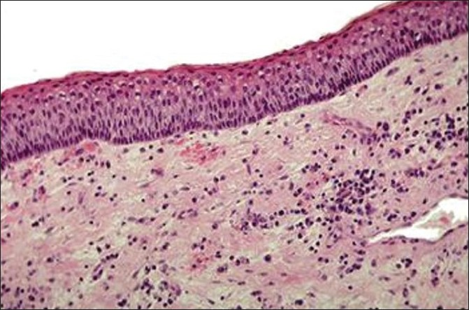 Figure 6 :Composed of thin, irregular bundles of collagen, contains islands of epithelium that may represent daughter cyst
