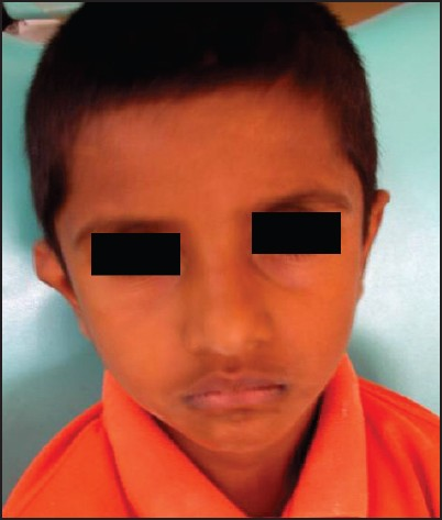 Figure 1: patient aged 6 years