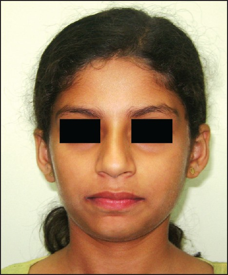 Figure 6: Post-treatment extraoral frontal view