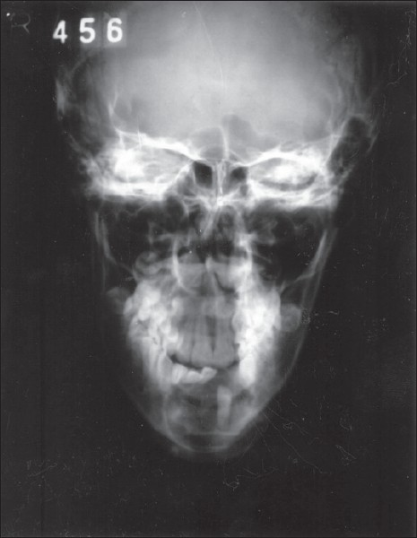 Figure 1: Paranasal sinus (PNS) X-ray view showing welldefined radiolucency in the parasymphysis region associated with unerupted 32