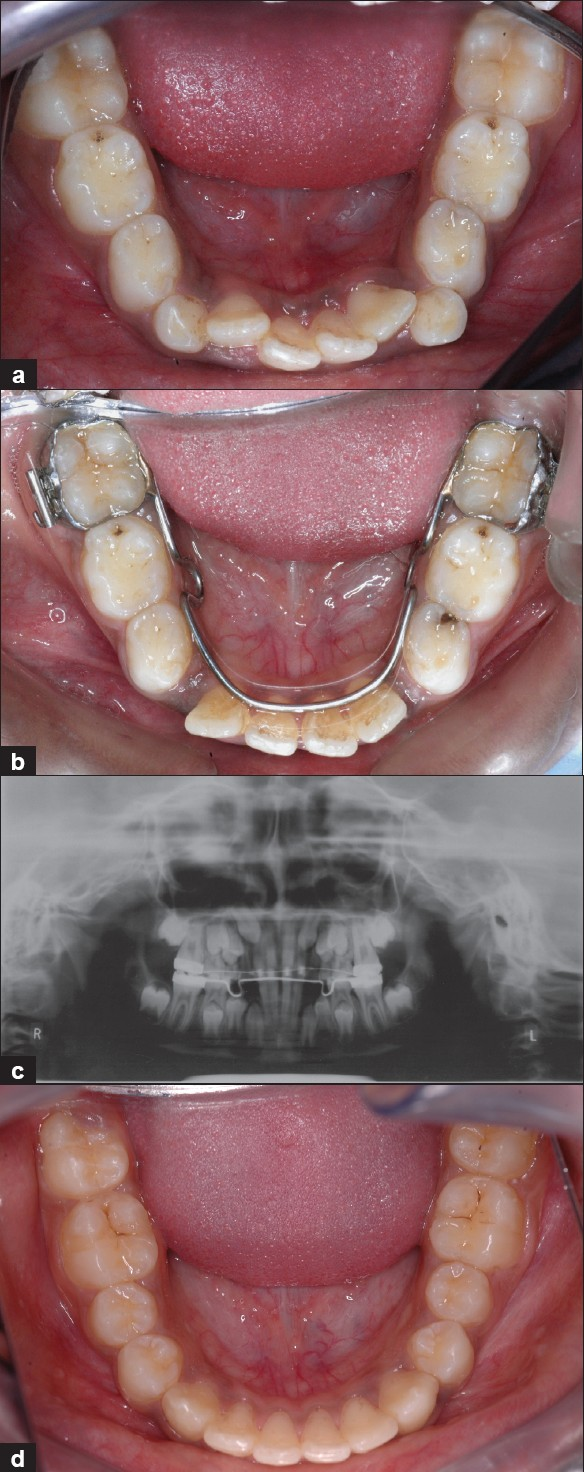 Figure 4: (a) Crowding during mixed dentition period; (b) Alignment of anteriors with utilization of extraction space; (c) OPG showing bicuspids erupting ahead of cuspid; (d) Lower incisor crowding resolved with utilization of leeway space