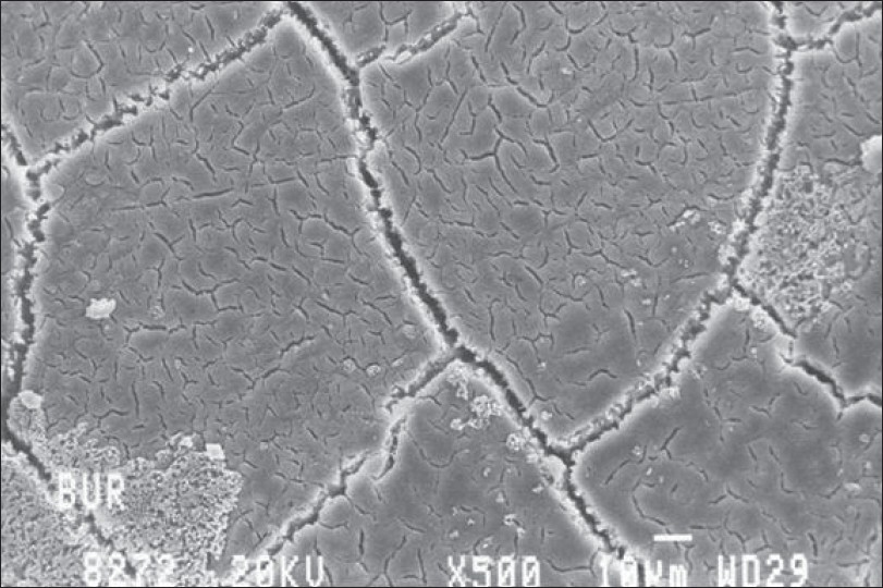 Figure 8: Morphology of the root surface planed with a rotary bur (scanning electron microscopy photograph, �0)
