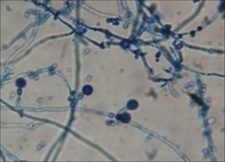 identification of candida albicans by using different culture medias