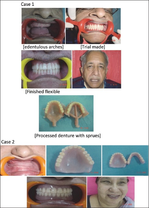 Figure 1: (Case 1 and 2) Complete/complete flexible dentures