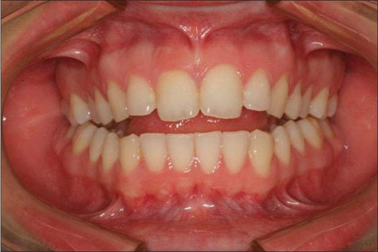 Figure 1: Frontal view of malocclusion from severe condylar bone loss