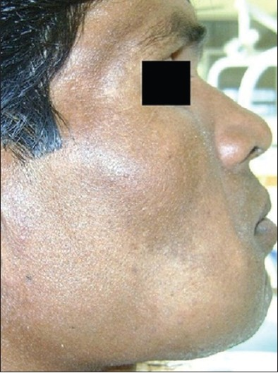 Figure 1: Extra-oral photograph showing the presence of a medium sized diffused swelling involving the right side of mandible, and covered with normal appearing skin of the patient in the case report