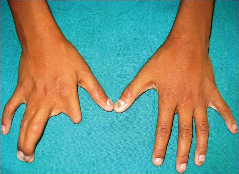 Lobster Claw Hand Defect Pictures to Pin on Pinterest ...