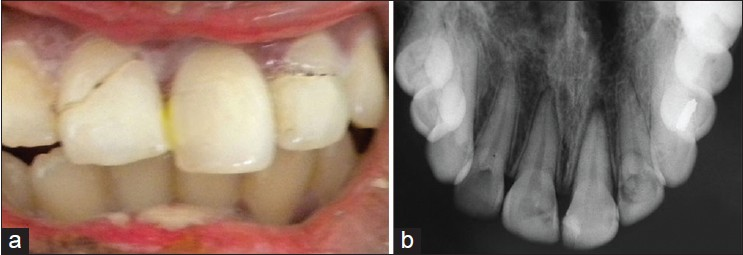 Figure 1: (a) Pre‑operative photograph and (b) Radiograph