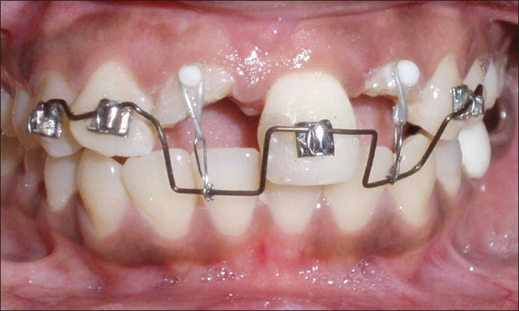 Figure 4: Customized appliance in place for orthodontic extrusion