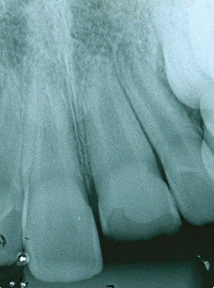 Figure 3: Radiographic periapical exam shows no evidence of root fracture, pathological periapical lesion and periodontal ligament tissue injures of the upper anterior teeth