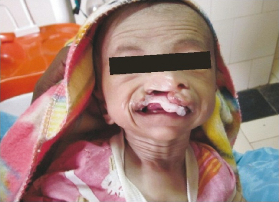 Ectrodactyly, ectodermal dysplasia, and cleft lip/palate