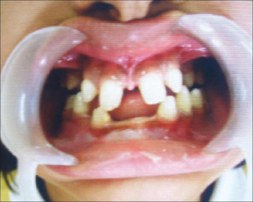 Figure 2: Intraoral examination