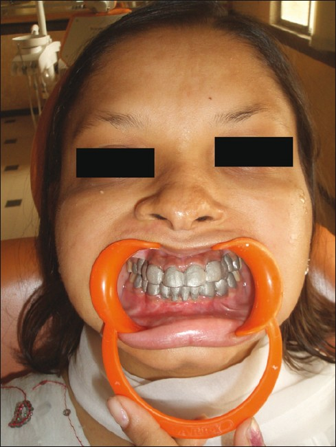 Oral rehabilitation of a young patient with hypohidrotic