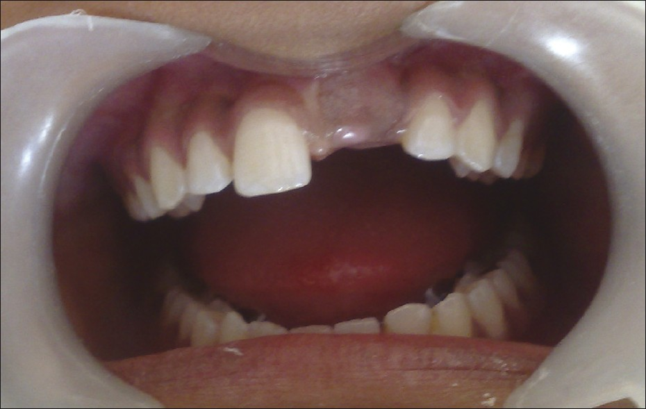 Figure 1: Missing permanent maxillary left central incisor