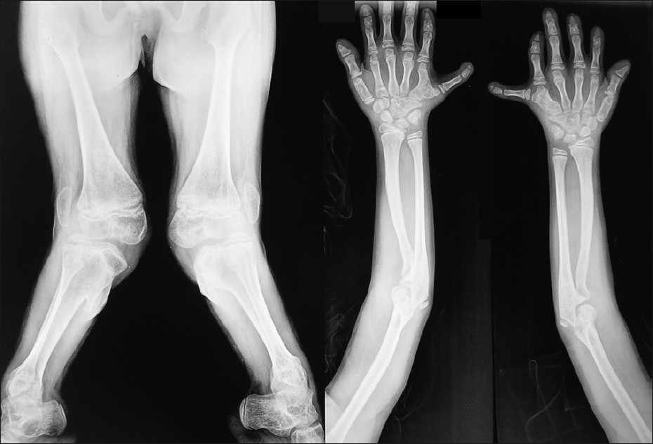 Figure 6: Radiograph of the upper and lower limb showed shortening of the extremities, genu valgum, post-axial polydactyly, fusion of hamate and capitate bones and fusion of 5th and 6th metacarpals