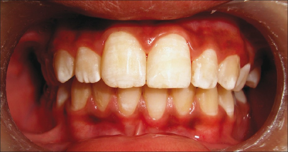 Figure 8: Post-treatment: Reattached tooth fragment