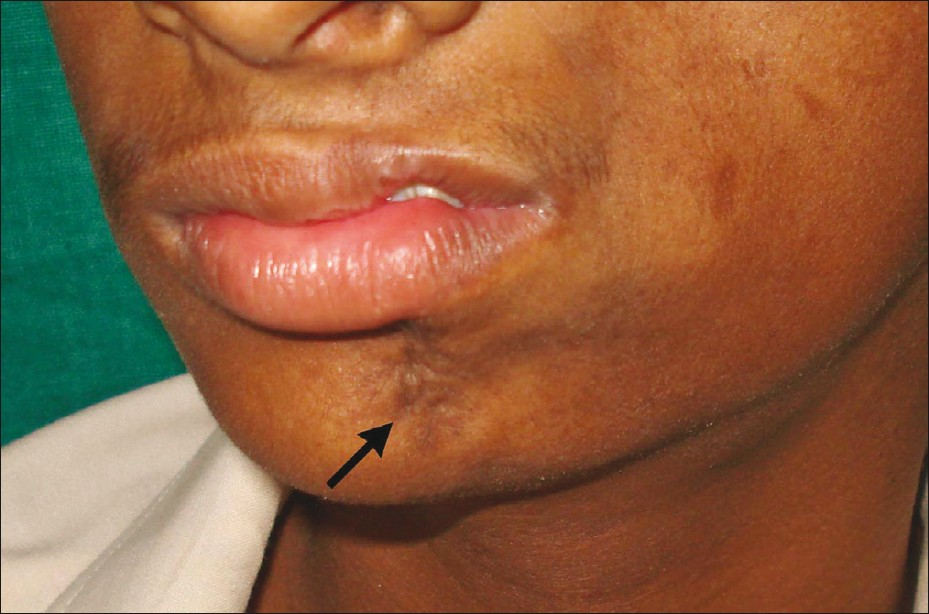 Figure 3: A big linear dark scar (coup de sabre) in the left side of mandibular mentum region