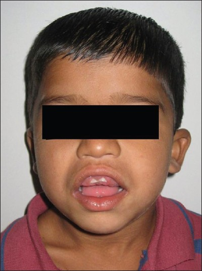 Figure 1: Preoperative photograph of the patient with gingiva covering teeth clearly seen