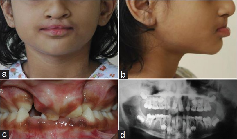 van der woude syndrome  management in the mixed dentition