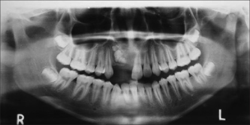 Figure 3: Occlusal radiograph showed radiopaque mass with multiple teeth like structures present in relation to 11, 12, 13 with expansion and thinning of the labial cortical plate