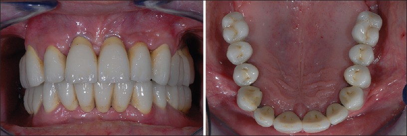 Figures 4 a and b: These images illustrate the final rehabilitation on full arch implants