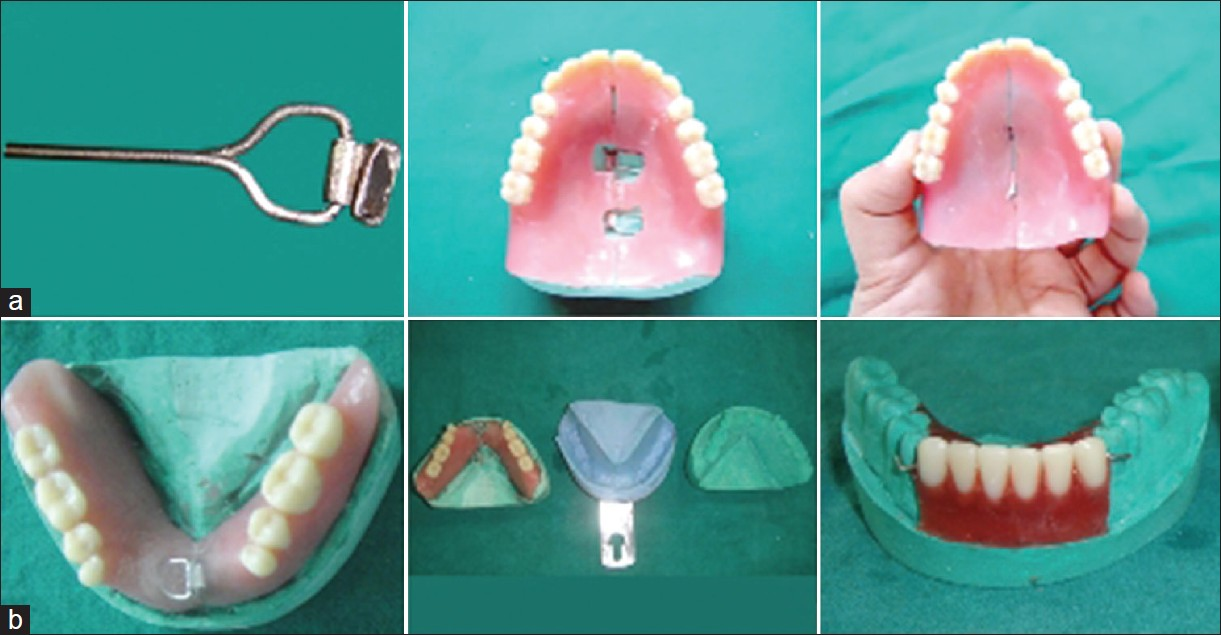 instructions given to complete denture patients