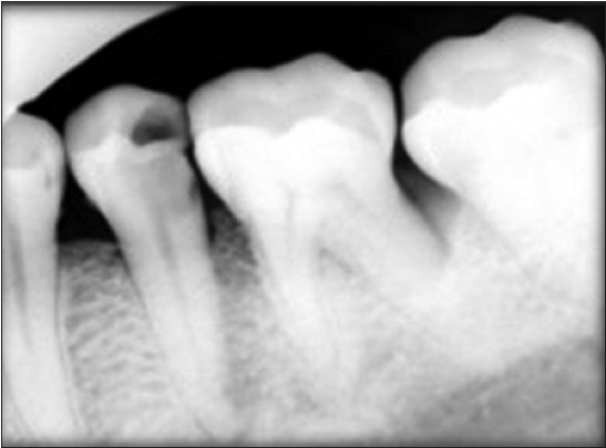 Incidence of post-operative pain following single visit endodontics in  vital and non-vital teeth: An in vivo study Bhagwat S, Mehta D - Contemp  Clin Dent