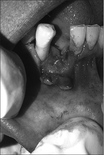 Figure 2: Crestal incision was placed on the alveolar ridge, vertical incisions were placed at the line angles of the adjacent teeth and full thickness flap was reflected till the mucogingival junction