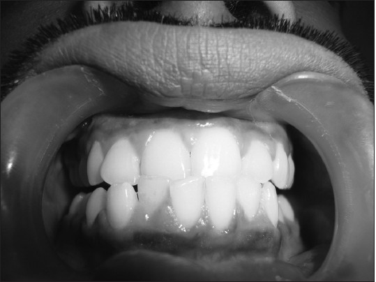 Figure 3: Clinical picture of gingival enlargement in a male epileptic patient (Grade 1) after 3 months of initiation of phenytoin therapy