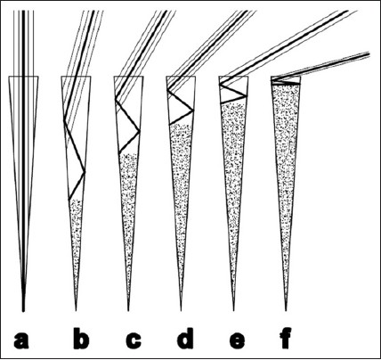 Figure 3: The possible effect of different rinsing angles on removing the etch products. The mottled area shows etching products remaining after rinsing in each group. a: 90°, b: 75°, c: 60°, d: 45°, e: 30°, f: 15°. Increasing the angle from 15° to 90° results in discharging of more precipitates from the resin tags