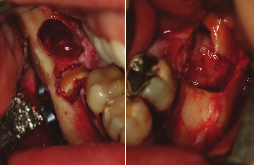 Figure 3: Transoperative clinical images (a) right side where we can notice the big cavity surrounding the impacted tooth and the fixation plate positioned on the mandibular ramus. (b) Left cavity
