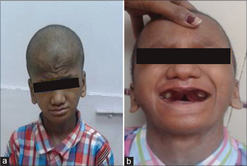 Hypohidrotic ectodermal dysplasia with ankylosis of