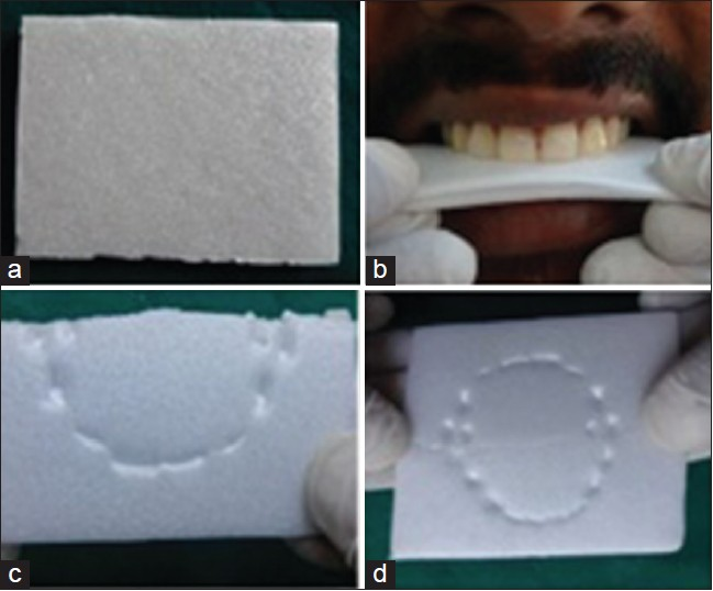 Figure 1: (a) Styrofoam sheet (b) test bite registration (c) resultant bite pattern (d) unfolded Styrofoam sheet showing maxillary and mandibular bite pattern on the same plane