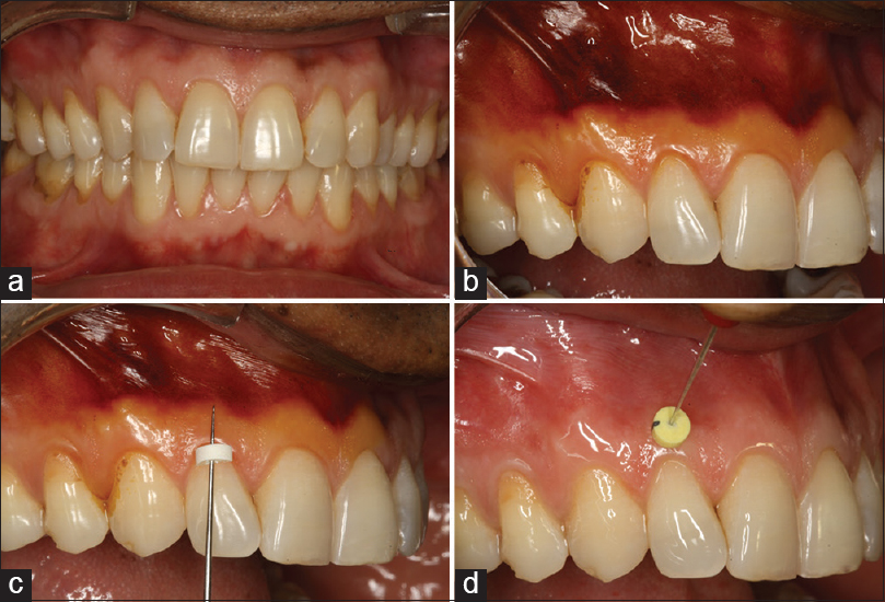 Prevalence Of Gingival Biotype And Its Relationship To Clinical