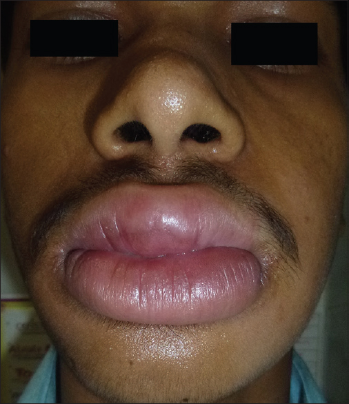 Figure 1: Extraoral view showing lip swelling more prominent with the upper lip. Note the hypopigmented patch in the center part of upper lip