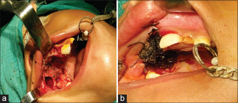 Figure 4: (a and b) Surgical resection of the alveolar portion followed by application of white head varnish pack in the defect
