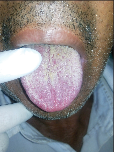Figure 3: Postoperative picture of a case of pseudo membranous candidiasis
