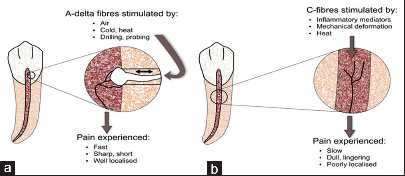 Figure 4: Diagram illustrating the characteristics of A-delta (a) and C-nerve (b) fibers within the dental pulp