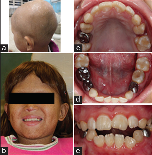Figure 3: Patient at 8-year-old. (a) Lack of hair (b) extraoral view showing the use of a wig (c) conclusion of the treatment with steel crown and composite restorations of the maxillary (d) and mandibular arch (e) intraoral front view