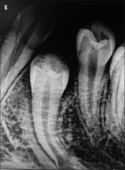 Figure 6: Follow-up intra-oral periapical radiograph of 34 after 9 months showing eruptive tooth movement