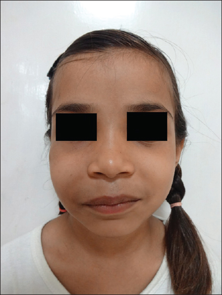 Did facial vascular malformation the incorrect
