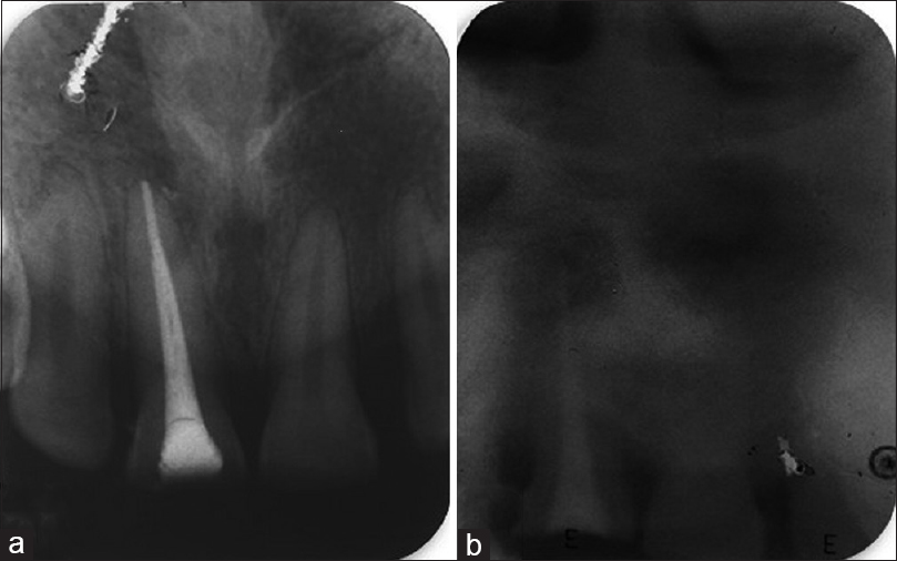 Figure 4: (a) Intraoral periapical postobturation radiograph of the maxillary central incisor. (b) Extraoral periapical postobturation radiograph of the maxillary central incisor